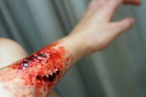 human bite on arm